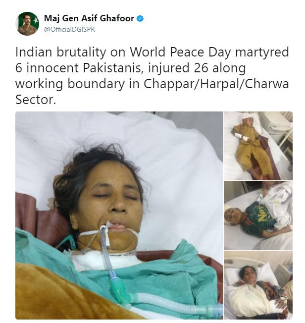 صور لبعض الجرحى نشرها المتحدث باسم الجيش الباكستاني