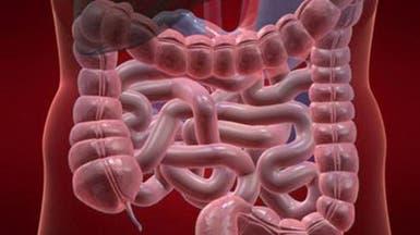 """نظام غذائي """"ملون"""" يكافح سرطان القولون"""