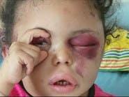 مأساة طفلة يمنية في الرياض تكشف تضليل الحوثيين