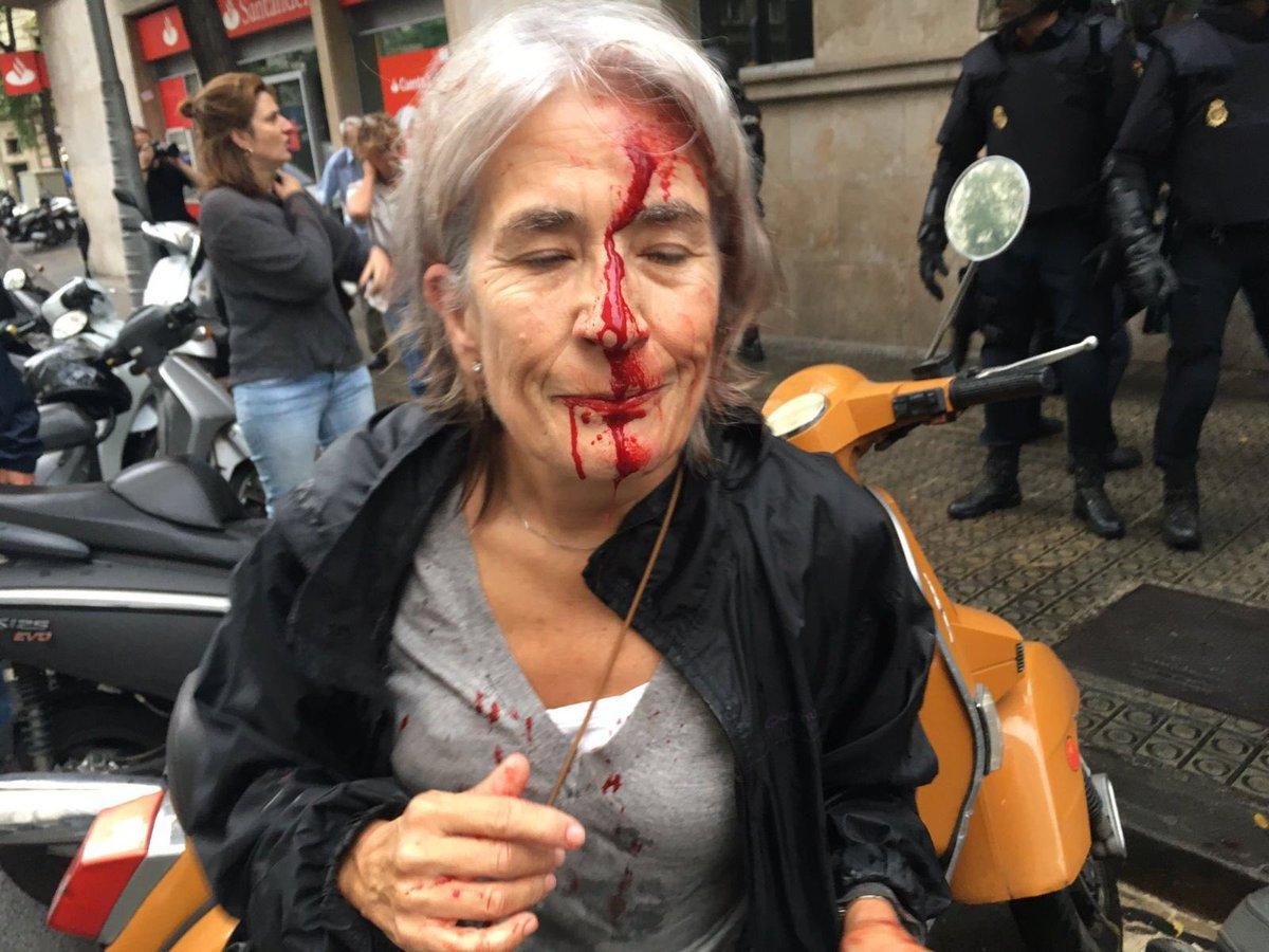 صورة متداولة عن اصابة امرأة اثر اشتباكات مع الشرطة الاسبانية