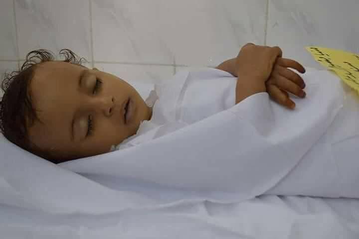 طفلة قنصتها ميليشيات الحوثي في تعز