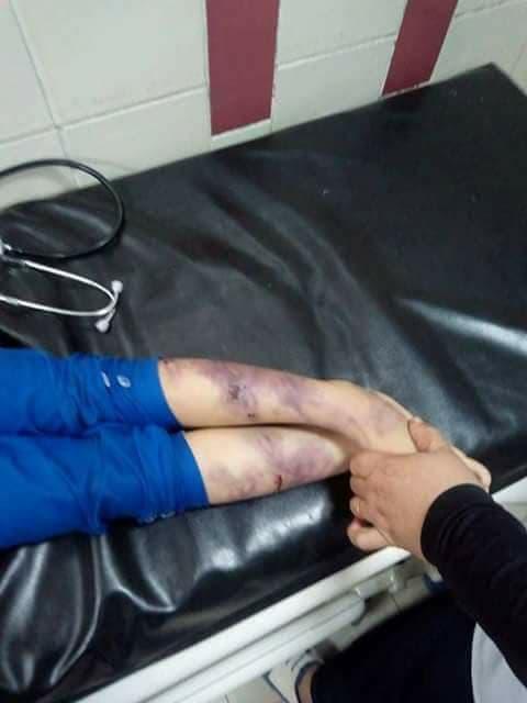 تعذيب طفلة مصرية حتى الموت 1