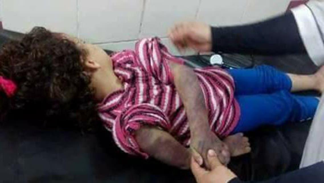 تعذيب طفلة مصرية حتى الموت