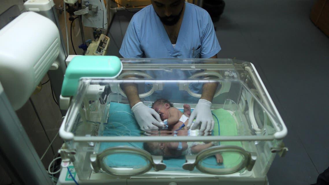 حالة نادرة.. صور لطفلين ولدا ملتصقين في غزة - الرئيسية