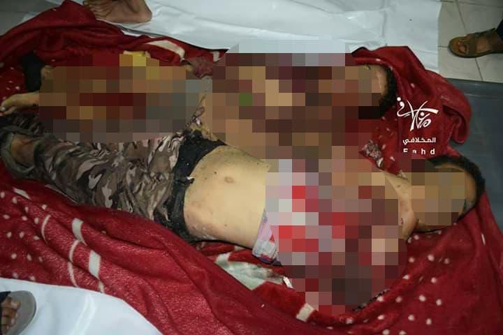مجزرة الحوثي