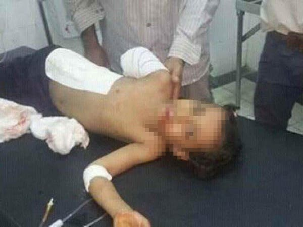 صور مروعة.. ميليشيا الحوثي ترتكب مجزرة ضد أطفال تعز