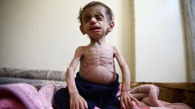 الأمم المتحدة:29 شخصا من الغوطة سيموتون حال عدم إجلائهم