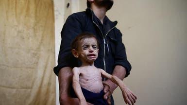 400 ألف جائع في الغوطة.. والمئات بحاجة لإجلاء عاجل