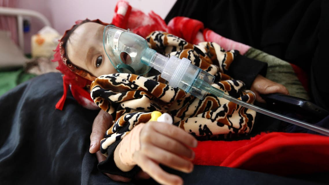 A malnourished Yemeni child receives treatment at a hospital in the capital Sanaa on November 22, 2017. afp