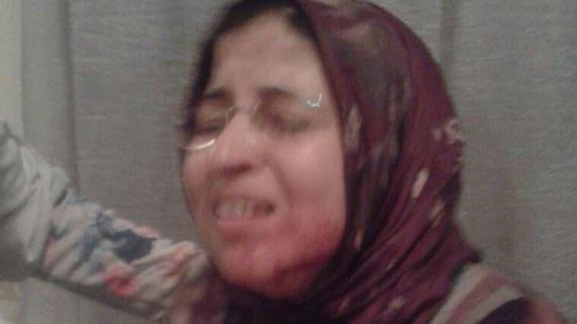 معلمة تعرضت لضربة بسكين على وجهها من أحد تلامذتها