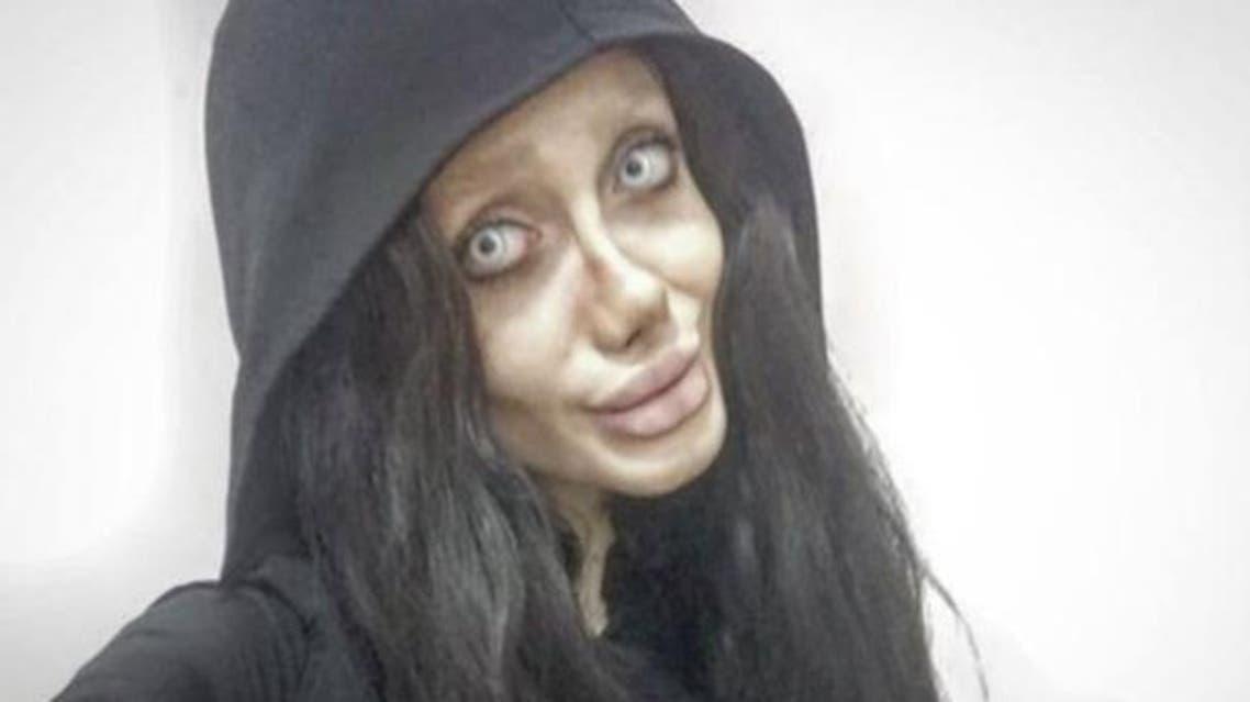 دختر ایرانی در پی چند جراحی پلاستیک به جای شباهت با آنجلینا جولی شبیه عروس مرده شد