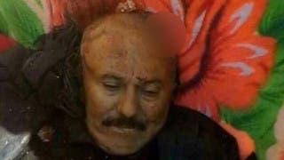 طبيب شرعي يمني يكشف ما حدث مع علي عبدالله صالح