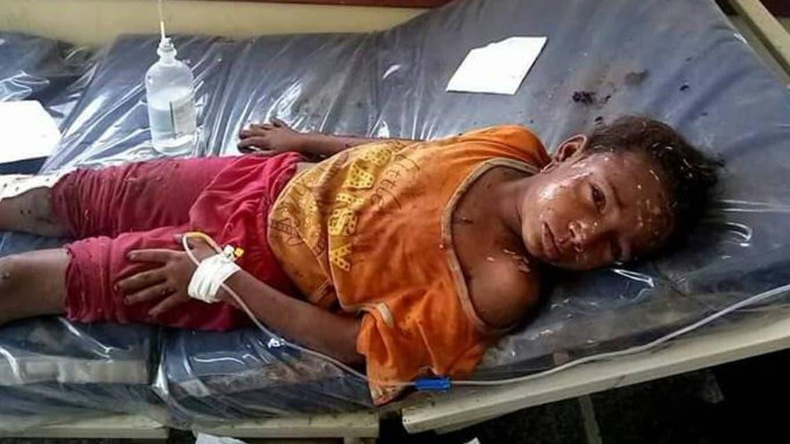ضحايا قصف حوثي