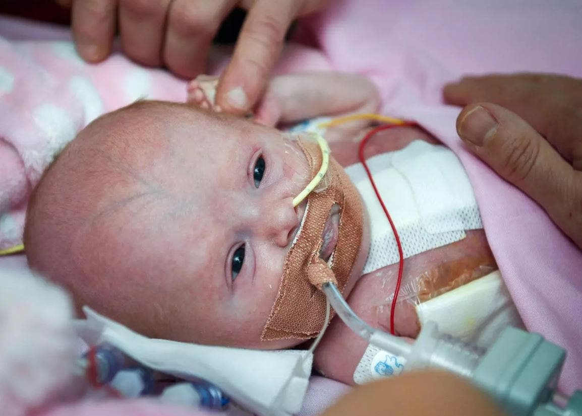 بالصور.. جراحة نادرة لرضيعة وُلدت بقلب خارج جسمها