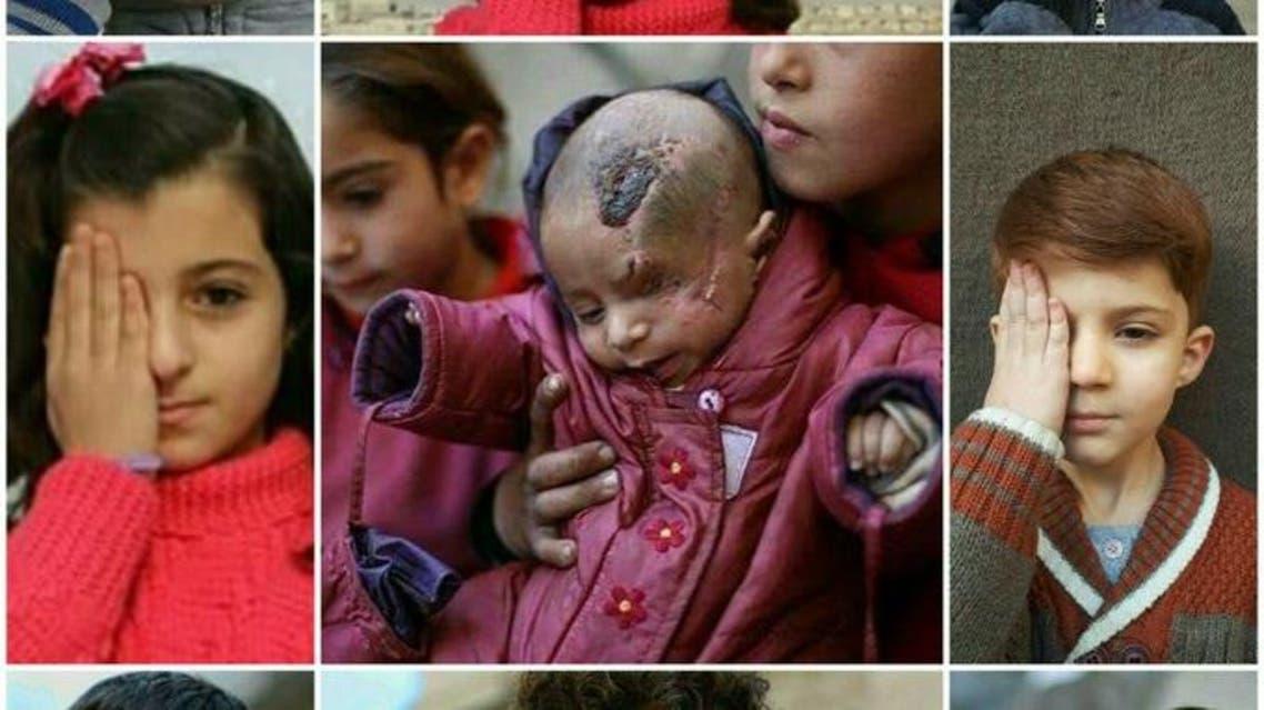 تصویر کودک سوری که در حمله رژیم اسد چشمش را از دست داد باعث همبستگی آنلاین شده است