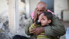 Blinded in one eye, Syrian baby becomes symbol of siege