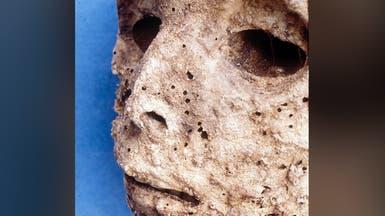 """التهاب الكبد """"ب"""" يصيب البشر منذ قرون.. ولم يتطور كثيراً"""