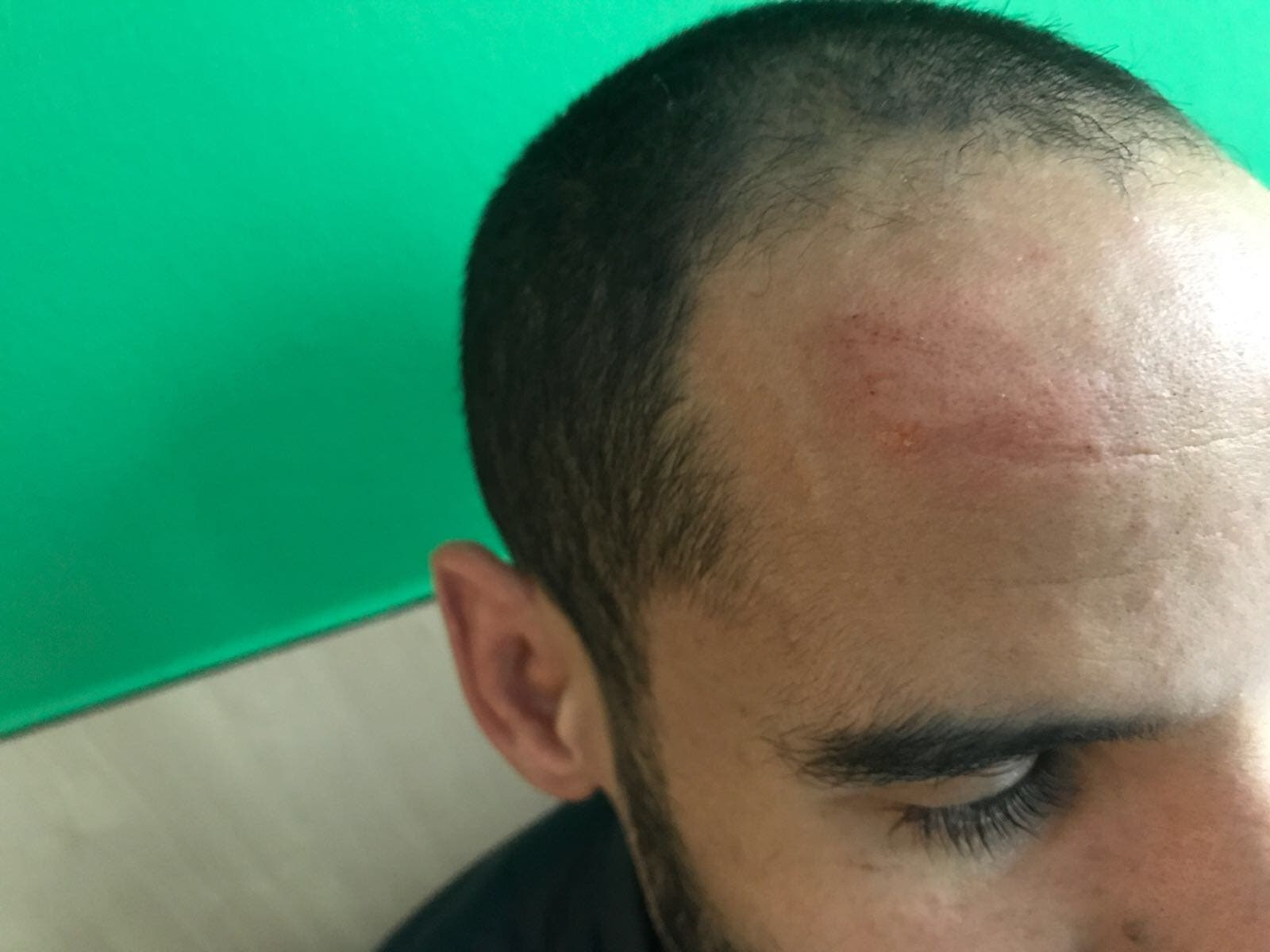 Wound on Nabil's forehead after a brush with Belgian police who were arresting migrants. (Ghassen Fridhi/Al Arabiya)
