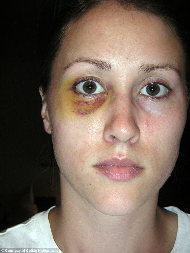 كولبي طليقة بورتر تعرضت للضرب على يديه