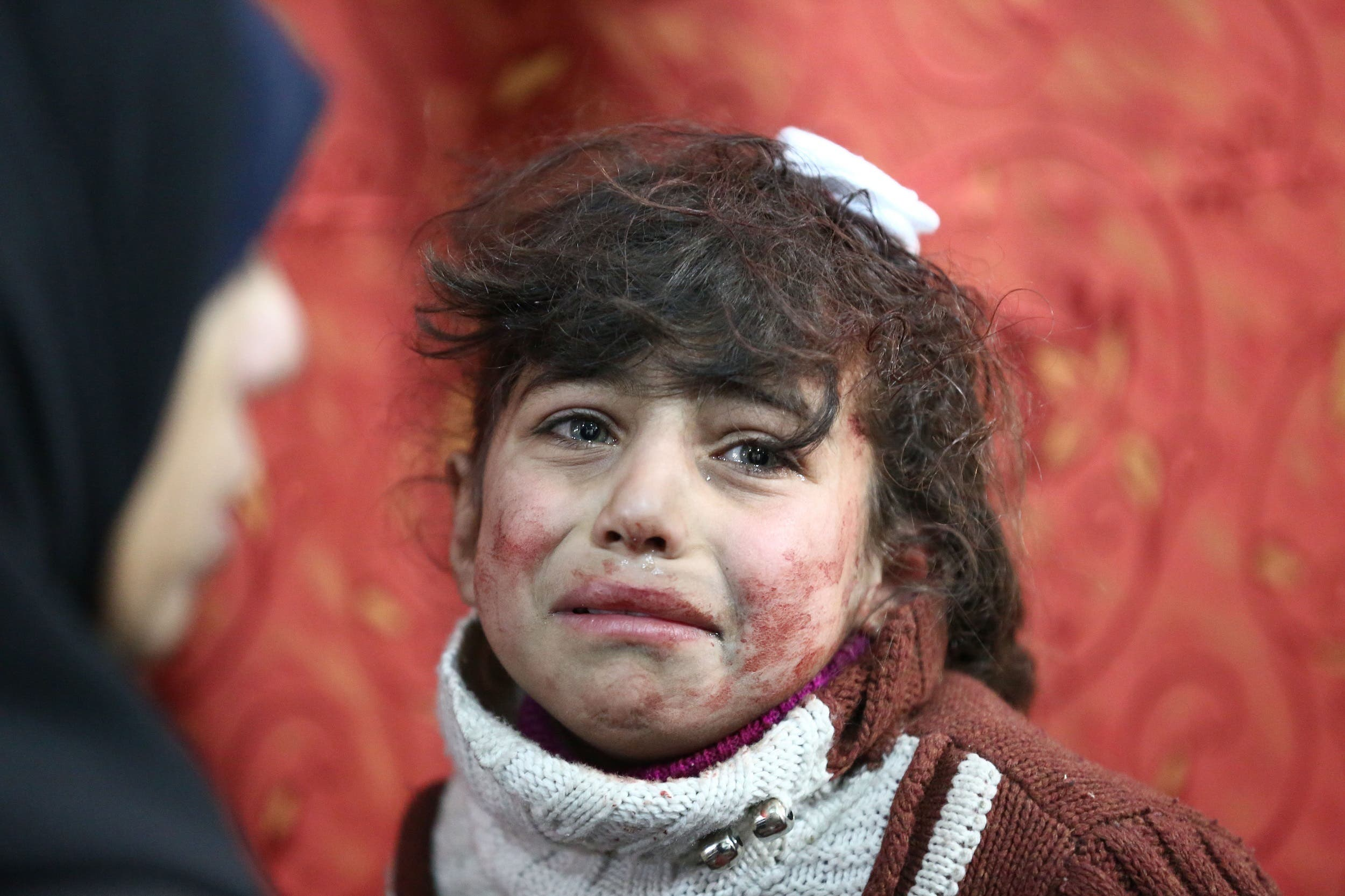 Hala, 9, receives treatment at a makeshift hospital following Syrian government bombardments in Eastern Ghouta on February 22, 2018. (AFP)