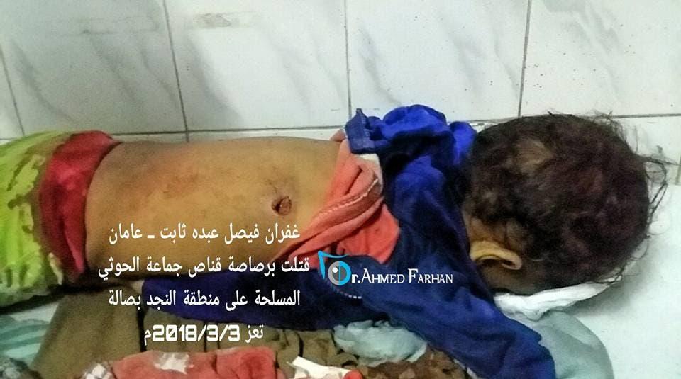 موقع اختراق الرصاصة الحوثية لجسد الطفلة غفران