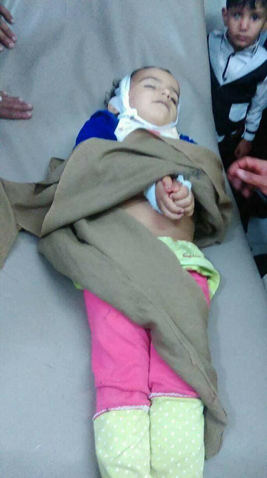 طفل يمني مصدوم أمام جثة الطفلة غفران