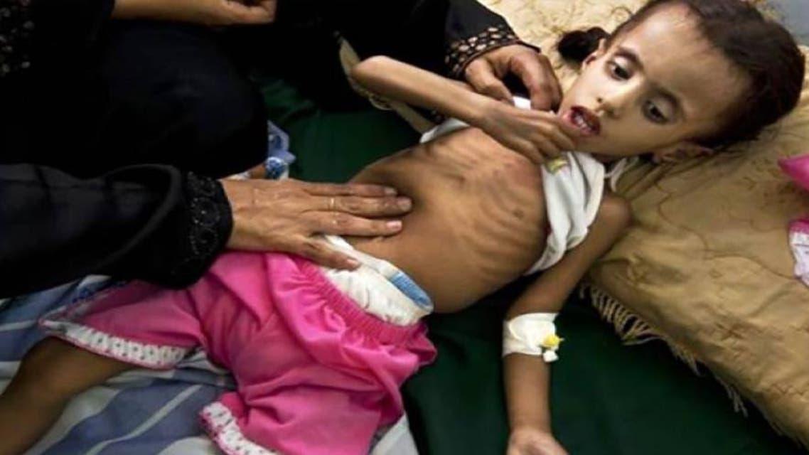 سوء التغذية بين الاطفال في المحويت