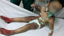 مصر: ماں کے بدترین تشدد کا نشانہ بننے والے بچّے کی تصاویر