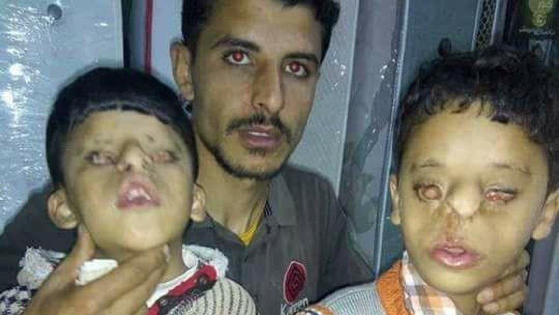 صور لمأساة طفلين مصريين ولدا بدون عينين
