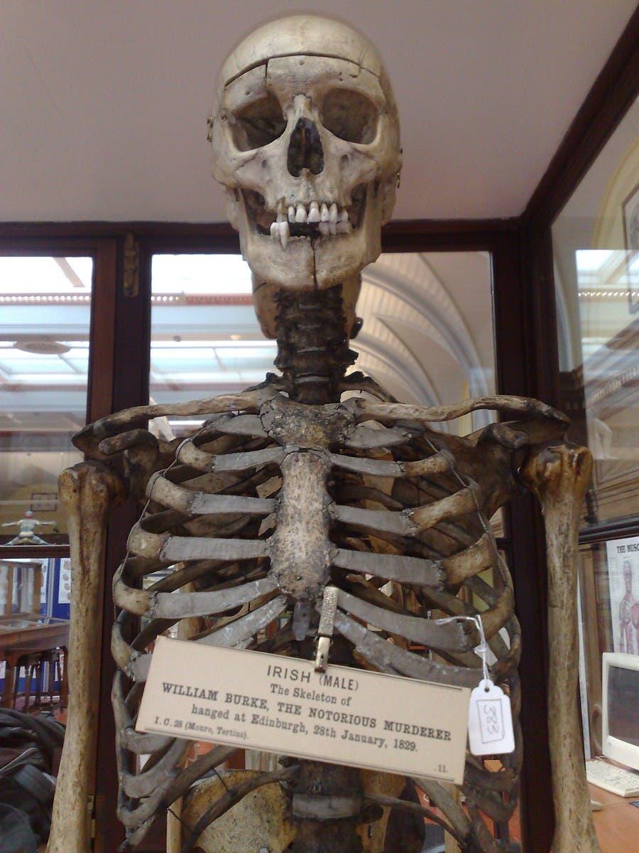 الهيكل العظمي لويليام بورك وهو معروض بجامعة الطب بأدنبرة