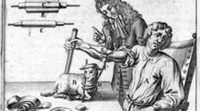 دم الخروف استخدم في أول عملية نقل دم إلى إنسان
