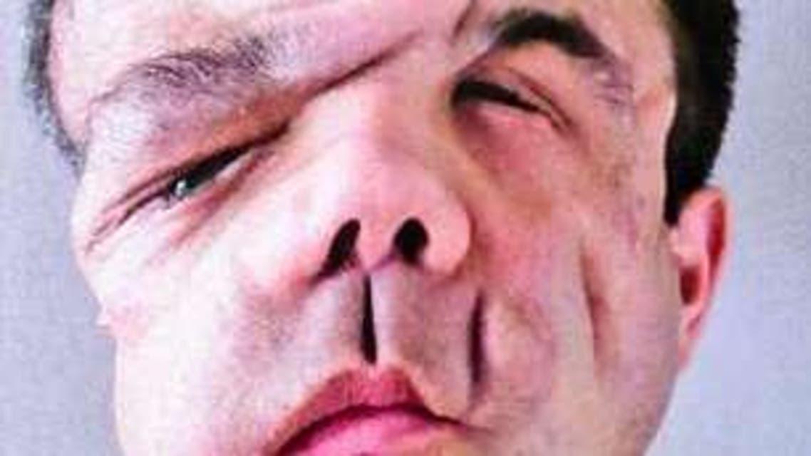 """جيروم هامون الذي بات يعرف بـ """"الرجل ذي الوجوه الثلاثة """""""