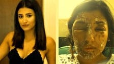 VIDEO: London man who threw acid at Muslim model jailed for 16 years