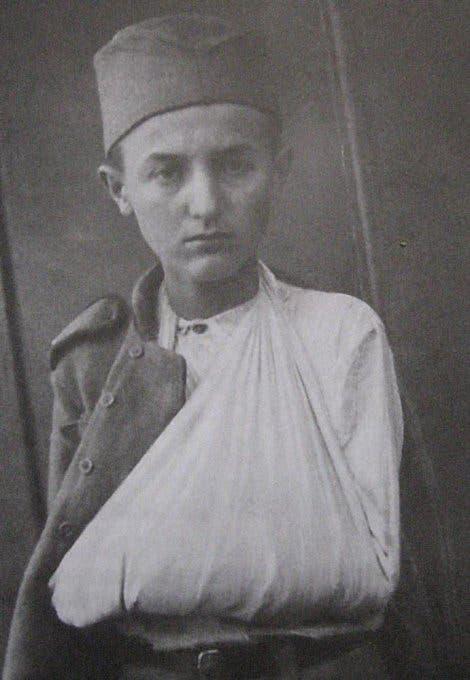 الجندي مومشيلو غافريتش عقب اصابته سنة 1918