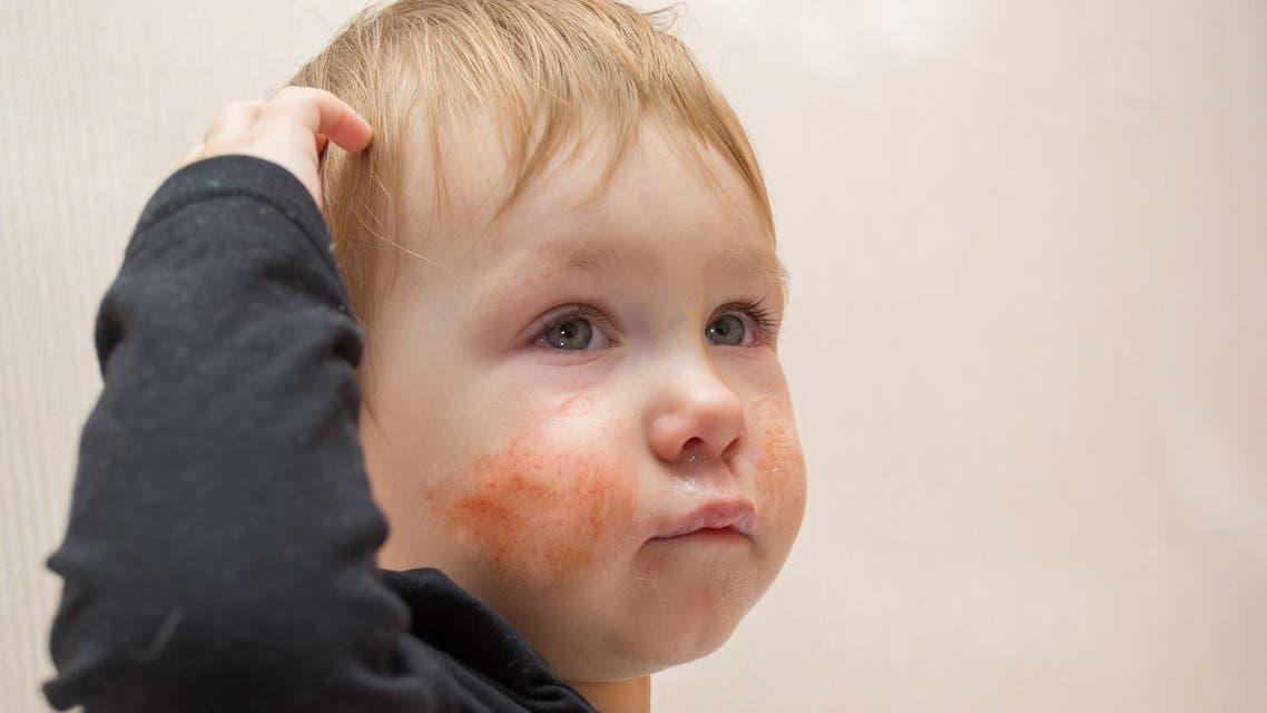 Eczema طفل مصاب بـ الإكزيما