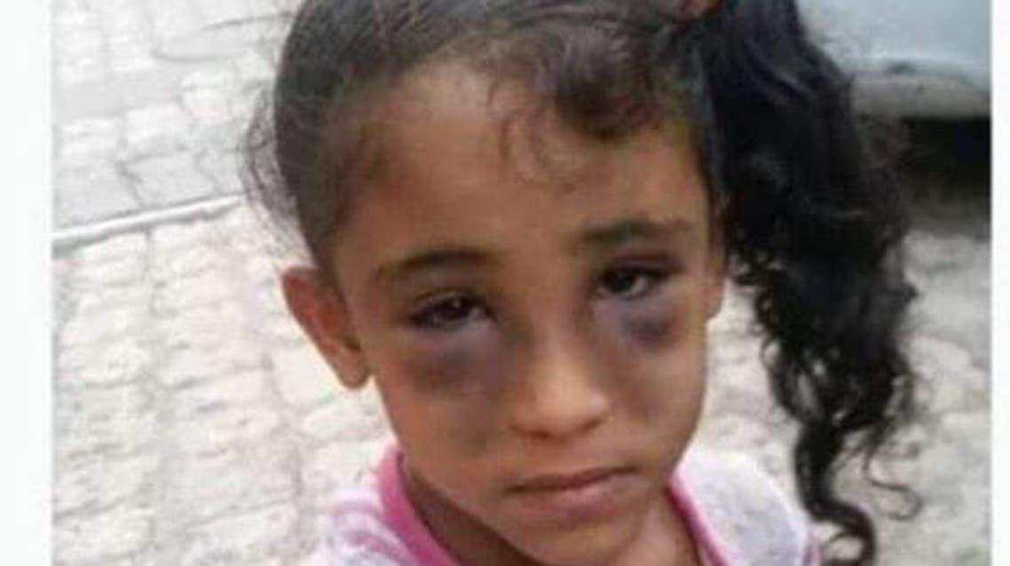 الطفلة شيماء واثار التعذيب الوحشي بادية على وجهها
