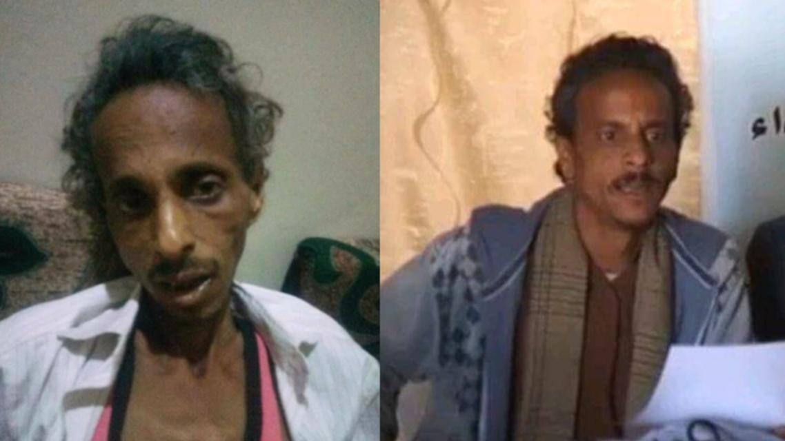 yemen journalist alrukun (supplied)