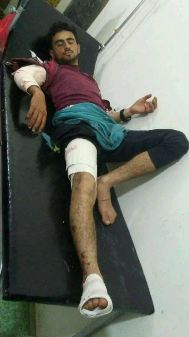 أحد ضحايا مجزرة الحوثيين في الضالع