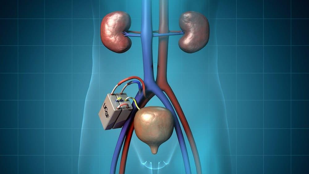 تعريض أعصاب الكلى لموجات صوتية يقلل من ارتفاع ضغط الدم
