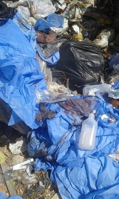 أعضاء بشرية في القمامة بمصر
