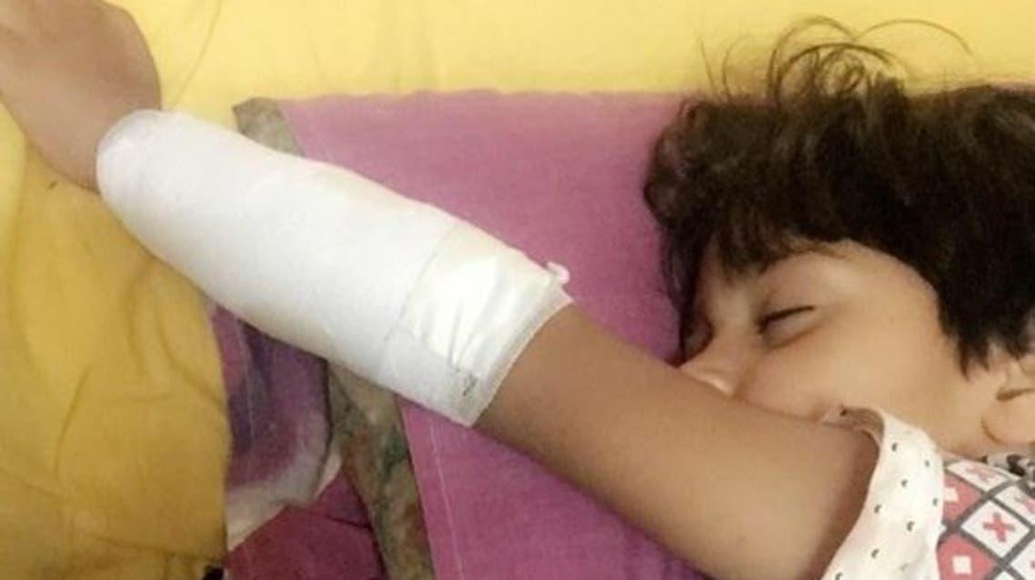 سلم كهربائي يلتهم يد طفل مصري