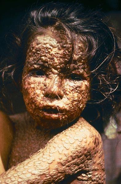 صورة لطفل من بنغلاديش مصاب بالجدري