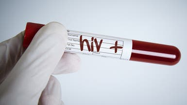 خبر سار.. تقدم مشجع بلقاح تجريبي ضد الأيدز