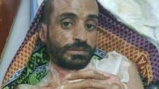 Al Arabiya English speaks to doctor treating Yemeni brutally burned by Houthis