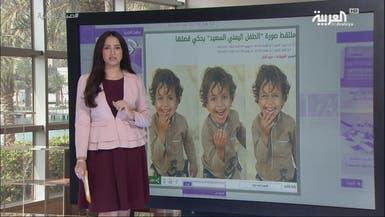 العربية.نت اليوم.. فرحة طفل يمني وهدية لا تخطر على بال
