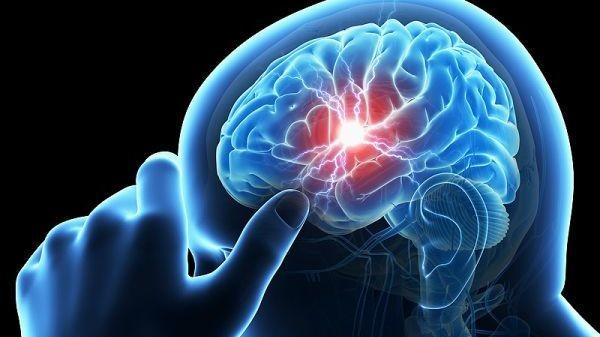 هكذا يمكن تقليل احتمالات الإصابة بسكتة دماغية