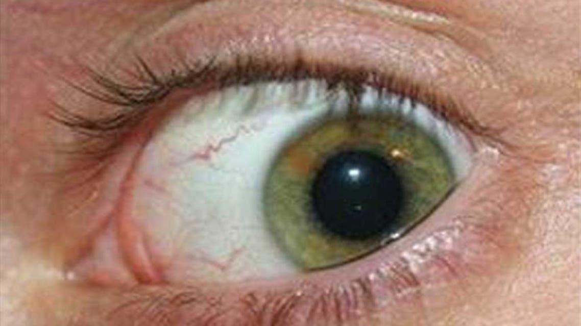 قرنية العين