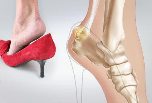 3effba42 a9da 4b62 8009 0ecde81ceb14 الحذاء القاتل ،،،ماهو ارتفاع كعب الحذاء الذي يمكن ان يودي بحياتك؟