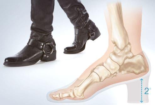 6e066057 5ace 4c32 8b1b 767943e867dc الحذاء القاتل ،،،ماهو ارتفاع كعب الحذاء الذي يمكن ان يودي بحياتك؟