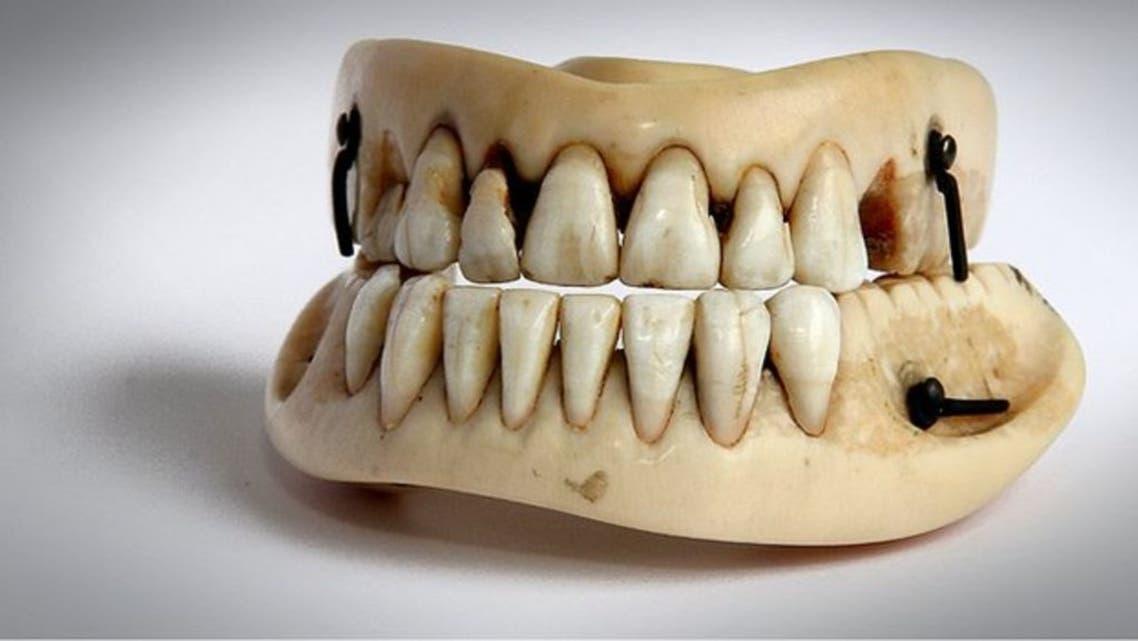 صورة لطقم أسنان صنع إنطلاقا من أسنان أحد القتلى الذين سقطوا خلال معركة واترلو